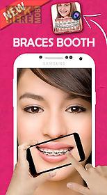 braces teeth booth