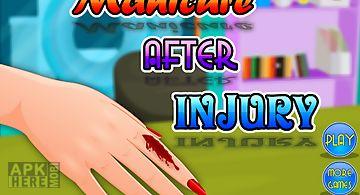 Manicure after injury - girls