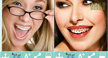 Brace yourself brace booth for android free download at apk here dental brace booth solutioingenieria Gallery
