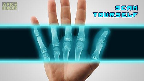best x-ray free