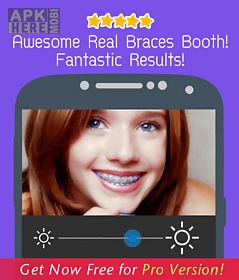 braces teeth booth 2.0