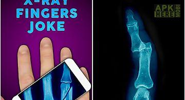 Simulator x-ray fingers joke